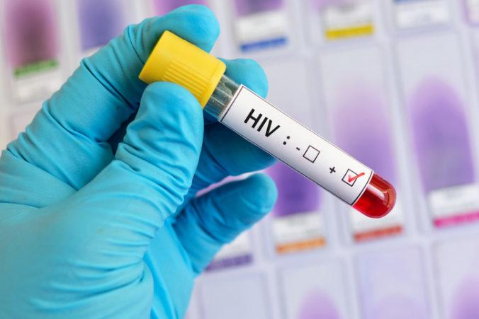 Desiatky HIV pozitívnych žien v Juhoafrickej republike museli podstúpiť nútenú sterilizáciu