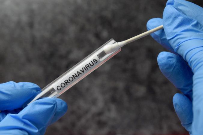 Výskum: Slováci chcú laboratórne testy na koronavírus. Testovanie na protilátky by malo byť súčasťou preventívnych prehliadok