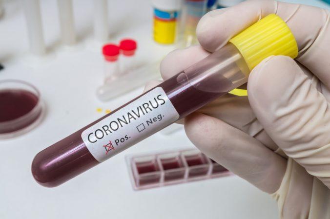 Aktualizované (štvrtok): Poznáme počet novonakazených Slovákov koronavírusom