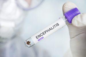 Ďalších osem prípadov ochorenia na kliešťovú encefalitídu zaznamenali v okresoch Brezno a Banská Bystrica